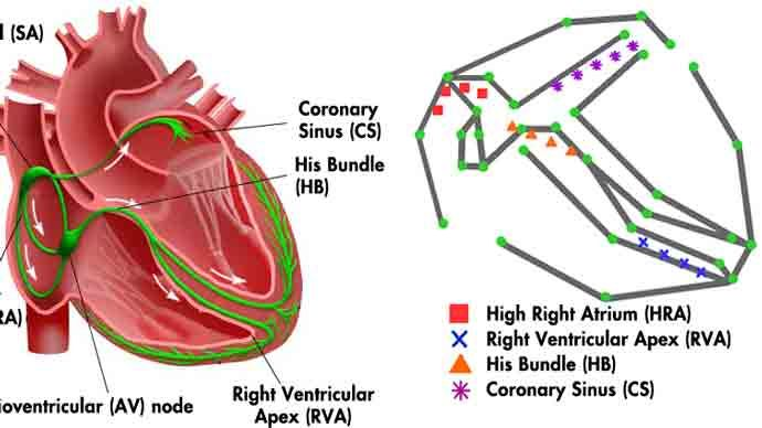 University of Pennsylvania Develops Electrophysiological Heart Model for Real-Time Closed-Loop Testing of Pacemakers