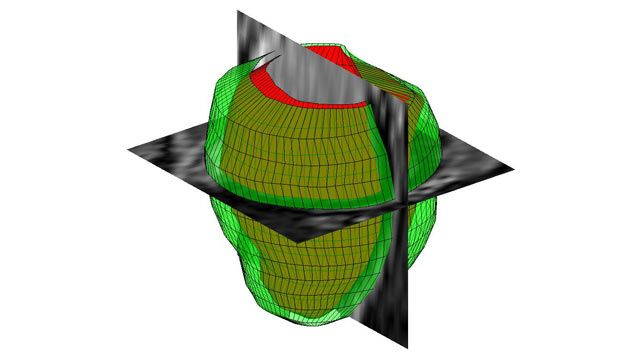 Three dimensional geometrical reconstruction of the human left ventricle from MR images.
