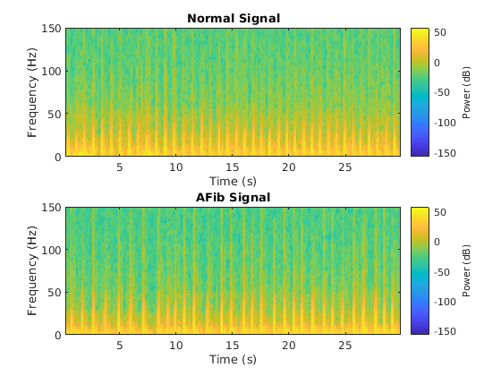 Classify ECG Signals Using Long Short-Term Memory Networks