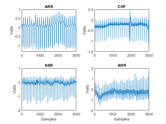 Signal Classification Using Wavelet-Based Features and
