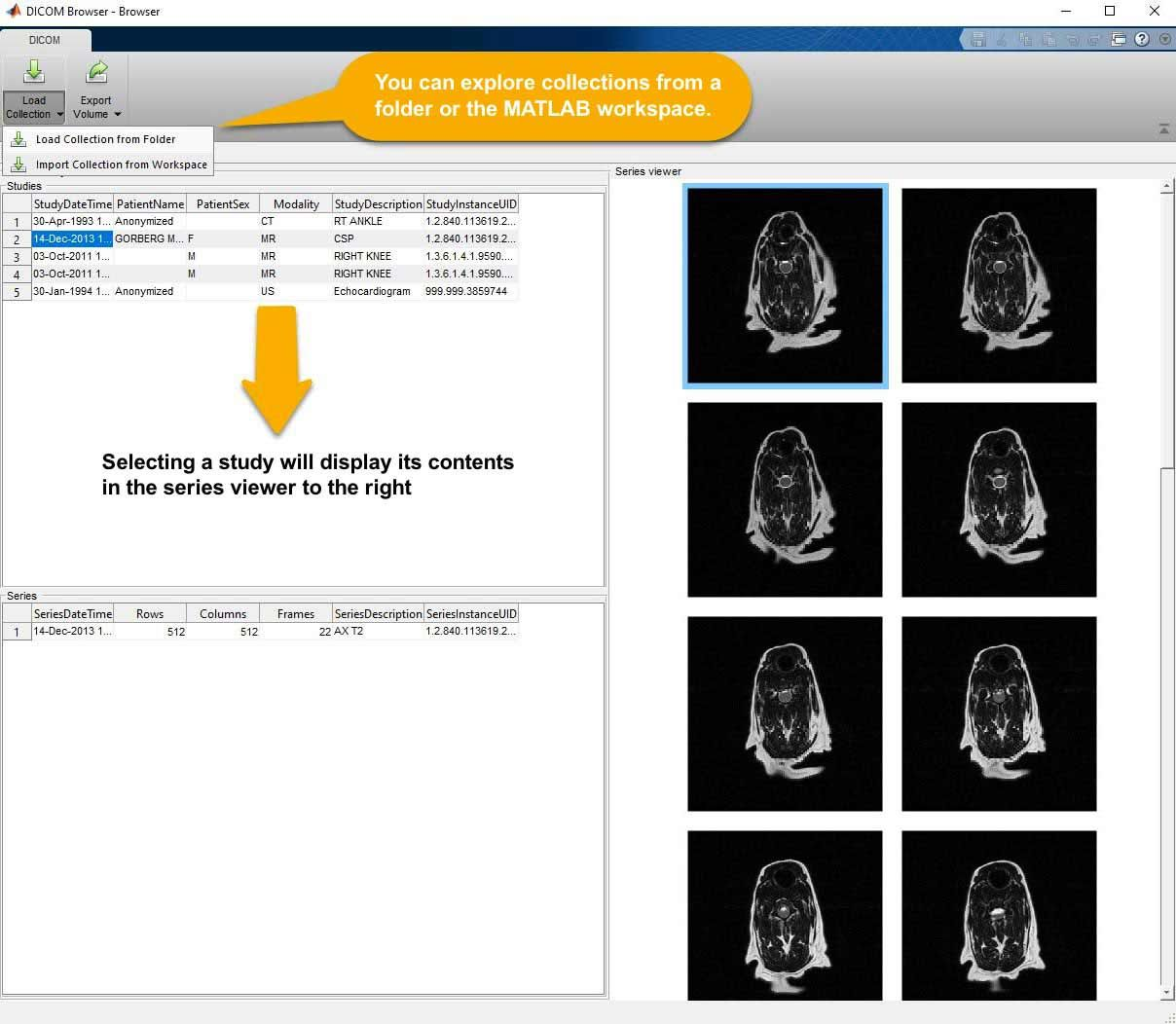 The DICOM Browser app allows you to explore collections of DICOM files and then export the data to other MATLAB apps or the workspace.